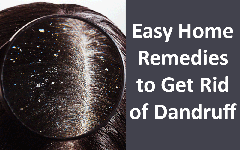 Easy Home Remedies to Get Rid of Dandruff