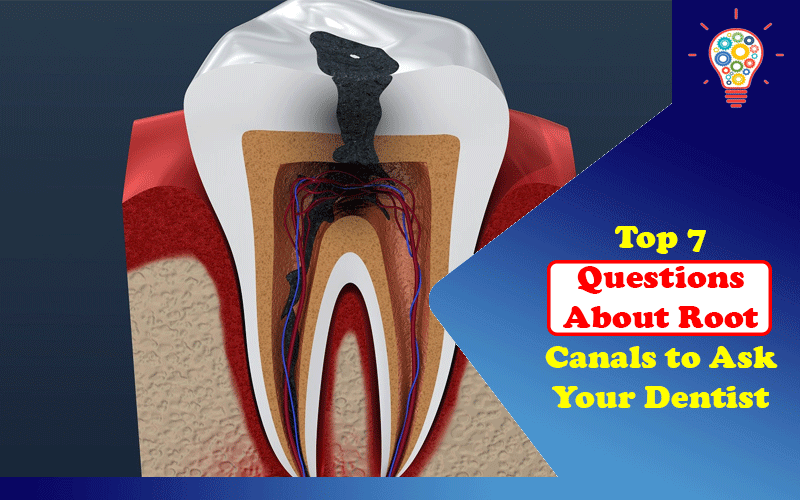 Questions About Root Canals