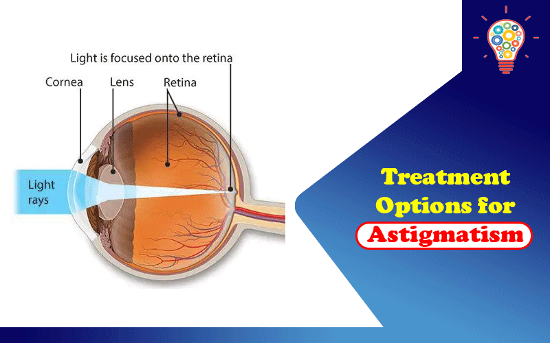 Treatment Options for Astigmatism